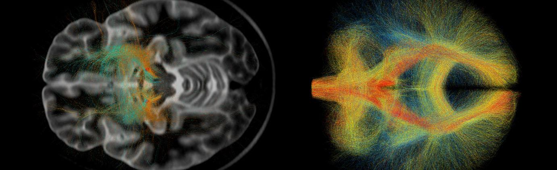 Gehirnströme NeuroCure