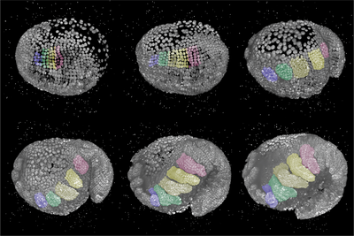 3D reconstructions of an embryo from a lateral view and the head on the left side.
